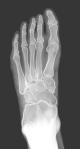 foot-xray